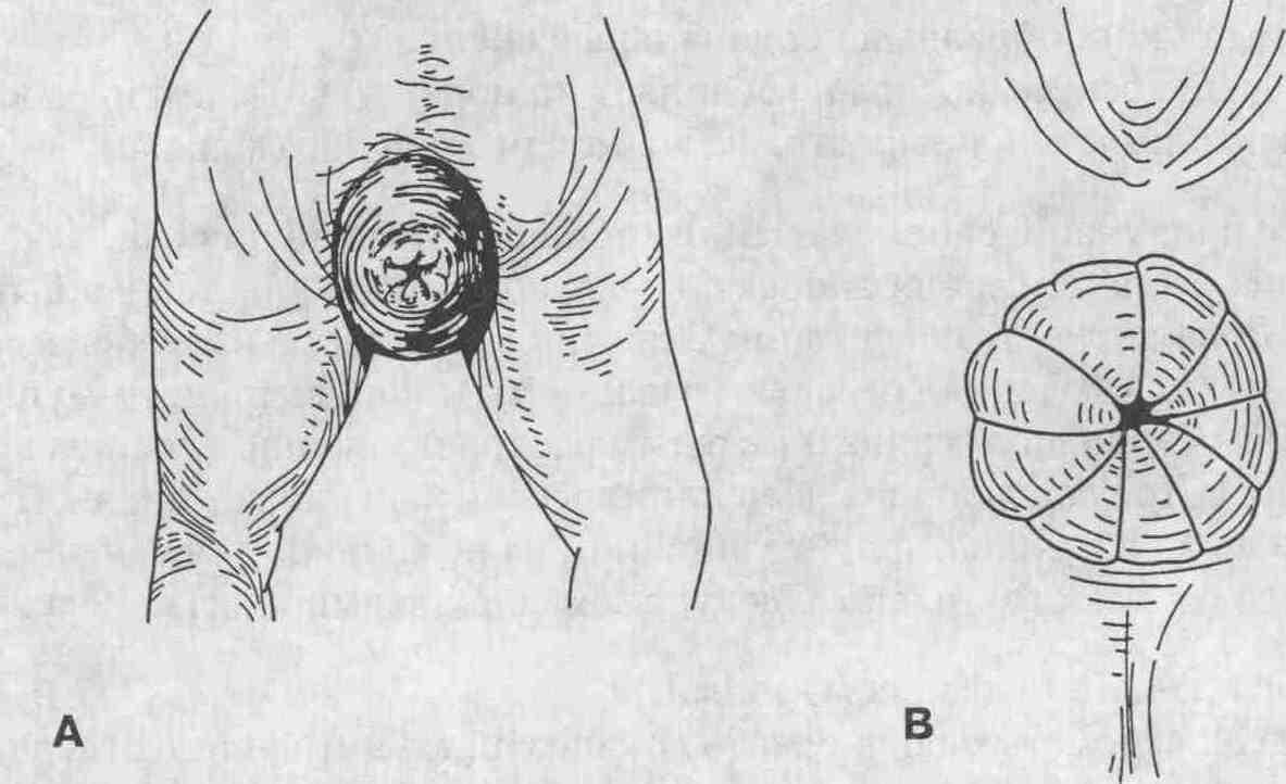 kak-sdelat-analniy-seks-zhene